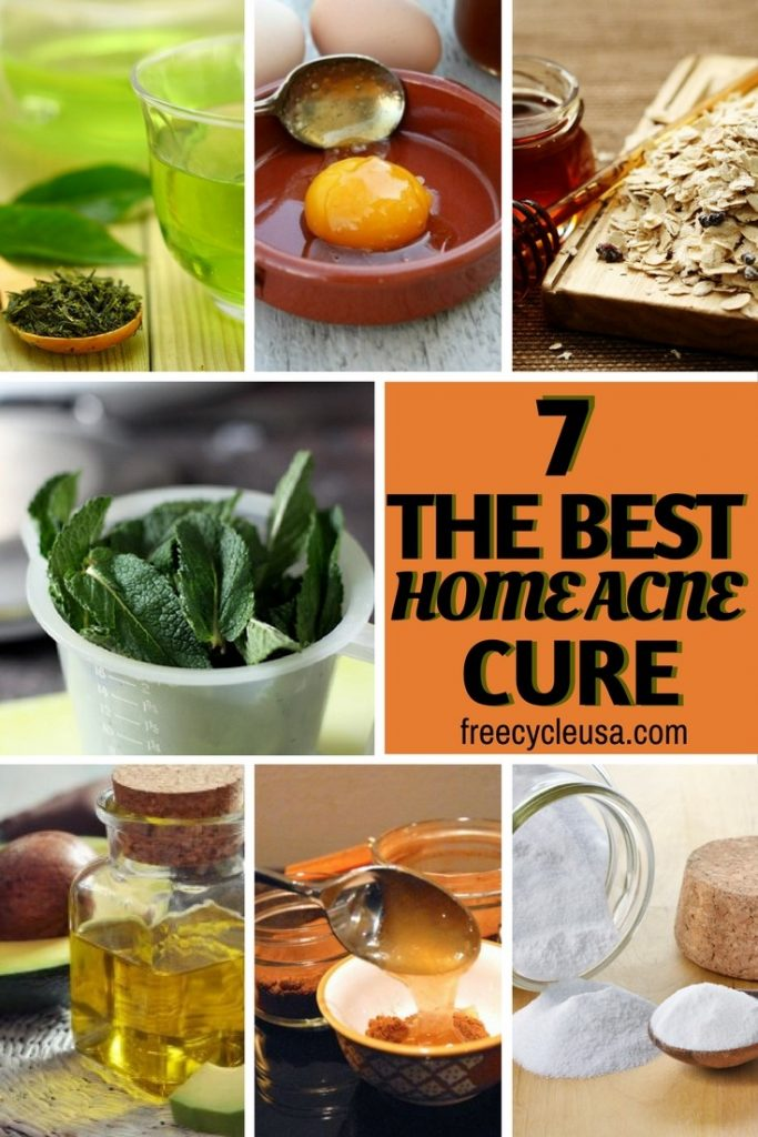 7 Best Home ACNE Treatment