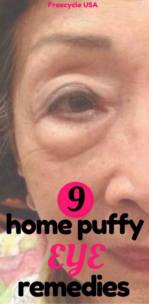 9 Home Puffy Eye Remedies